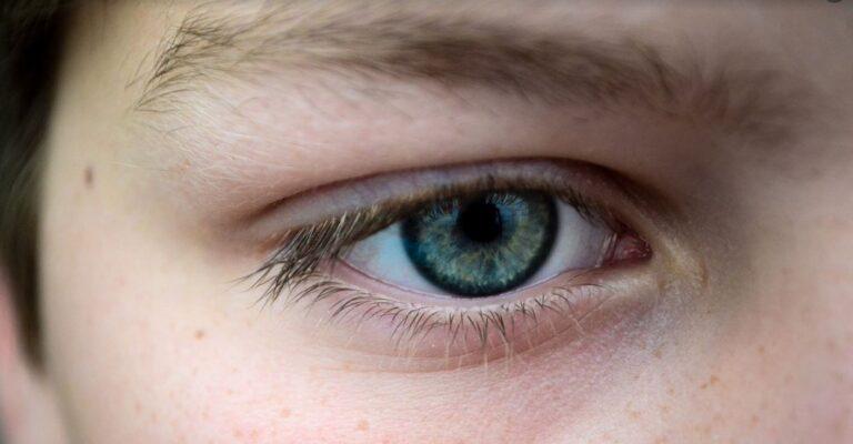 "Ever heard of ""eyebrow dandruff""?"